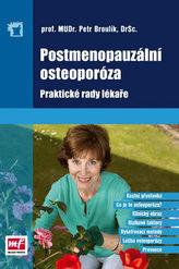 Postmenopauzální osteoporóza. Praktické rady lékaře
