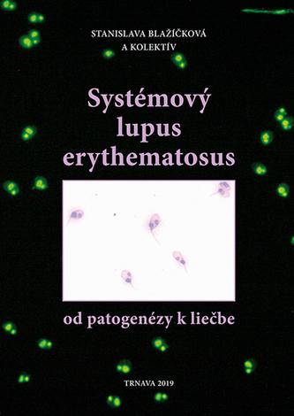 Systémový lupus erythematosus /od patogenézy k liečbe