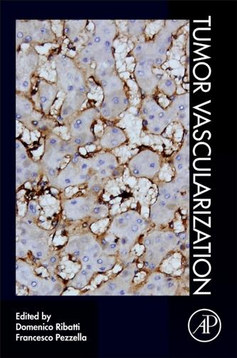 Tumor Vascularization