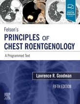 Felson\'s Principles of Chest Roentgenology, A Programmed Text