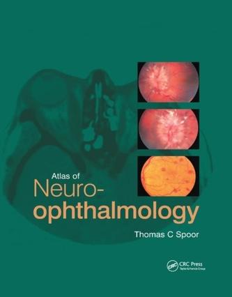 Atlas of Neuro-ophthalmology