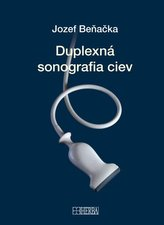Duplexná sonografia ciev